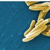 研究人员确定造成结核病易感性的遗传变异