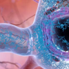 神经科学家发现阿尔茨海默氏症的大爆炸