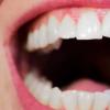 解读人体唾液润滑的基本机理