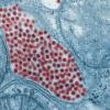 美国国立卫生研究院官员称东部马脑炎病毒构成紧急威胁