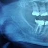 扑热息痛和布洛芬比阿片类药物更有效治疗急性牙痛