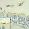 由波士顿大学科学家领导的研究小组发现了一种新型的肺细胞