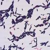 肠道细菌可能有助于预防高盐饮食的影响