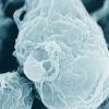 最近发现的抗病毒蛋白抑制非人类灵长类动物中的HIV-1