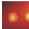 艰难梭菌生物学的新发现可能导致危险感染的治疗