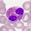 新的AI驱动的单血细胞分类方法