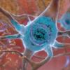 在阿尔茨海默氏病中 炎症小体同时驱动淀粉样蛋白和Tau病理