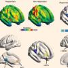 新研究聚焦负责疼痛的安慰剂反应的大脑区域