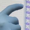 尿液测试可以简化寨卡病毒的检测