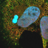 罕见病基因在慢性丙型肝炎感染中起关键作用