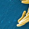 研究人员发现抑制结核分枝杆菌的新方法