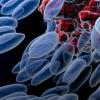 乳腺癌细胞的健康取决于塞子