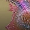 确定了关键的癌症生长和重塑酶