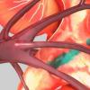 通过血浆置换传播戊型肝炎的病例