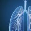 肺间质异常与死亡率增加有关