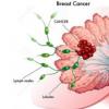 研究人员发现治疗ER +乳腺癌的机会错失