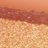微针在深色皮肤类型中似乎很有希望