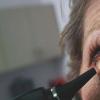 肉毒杆菌毒素成功治疗老年性熵