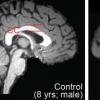 使用精确表观基因组编辑修复小鼠遗传性脑病