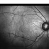 研究小组发现了两种蛋白质在视力和预防盲眼疾病中的作用