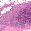 过度活跃的FOXA1重编程内分泌抗性乳腺癌 使其转移