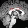 精确的表观基因组编辑可以修复智力障碍的遗传综合征