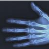 腕部骨折可能预示绝经后妇女容易发生严重骨折