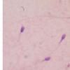 研究人员发现导致男性不育的精子表观基因组缺陷