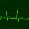 出生季节可能与心脏死亡的风险有关
