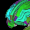 肥胖可能影响儿童的大脑发育