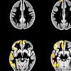 大脑的发育变化可能会影响青少年醉酒的频率