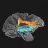 大脑中令人惊讶的新关注来源