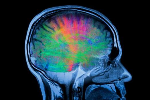 基因疗法通过重新布线大脑缓解了帕金森氏症