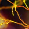 高胆固醇会导致运动神经元疾病吗
