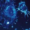 研究发现 许多年轻的胃癌患者患有独特的疾病