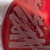 噬菌体和其他方法将可能需要治疗可能被多种细菌耐药的细菌病原体感染的患者