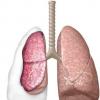 自发性气胸的保守治疗与介入治疗