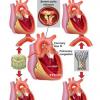 经导管主动脉瓣置换术后利伐沙班的对照试验