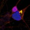 未发现神经系统星形细胞在散发性运动神经元疾病中的初步保护作用