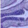 研究表明 单剂HPV疫苗可能有效预防宫颈癌