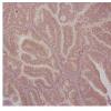 研究人员发现子宫内膜癌生长中的关键蛋白