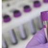 简单的血液检查可以帮助预测帕金森氏病的进展