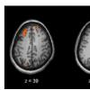 多中心神经影像研究为精神分裂症提供新见解