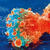 癌细胞改变蛋白质生产机制以加速转移