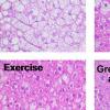 绿茶提取物与运动相结合可减少小鼠的脂肪肝疾病