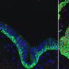 研究人员发现促进肺部健康的新化合物