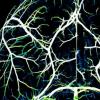大脑及其动脉如何通信以为神经活动增强的区域供应血液