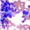 癌症研究人员发现了人类基因组中与皮肤癌风险相关的新区域