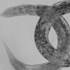 线虫的新模型有助于罕见遗传病的研究