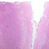 研究表明 新药有助于中风后一段时间内保存脑细胞